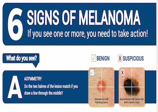 6 signs of Melanoma